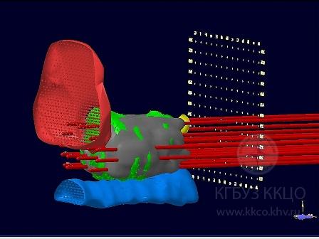3D реконструкция разметки при брахиотерапии